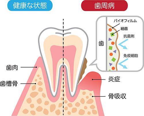歯周病は進行に合わせての治療が重要