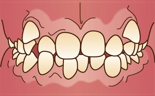叢生 歯並び